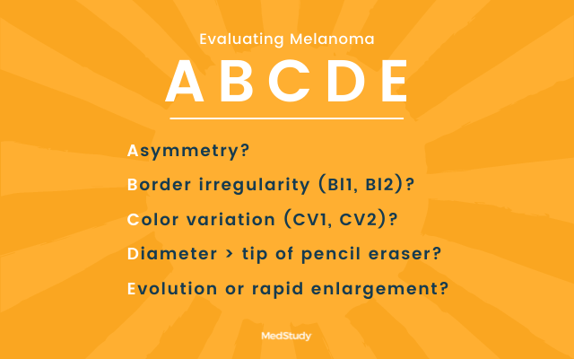 abcde rule for evaluating melanoma
