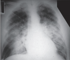 PA chest showing ARDS