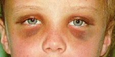 Racoon eyes and battle sign images—Source: Thomas Krzmarzick, MD