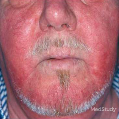 skin signs showing rosacea